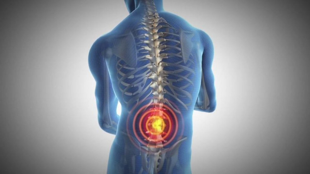 Tips to Ease your backpain - Dr.Isabel Perry, 21stCenturySafety.